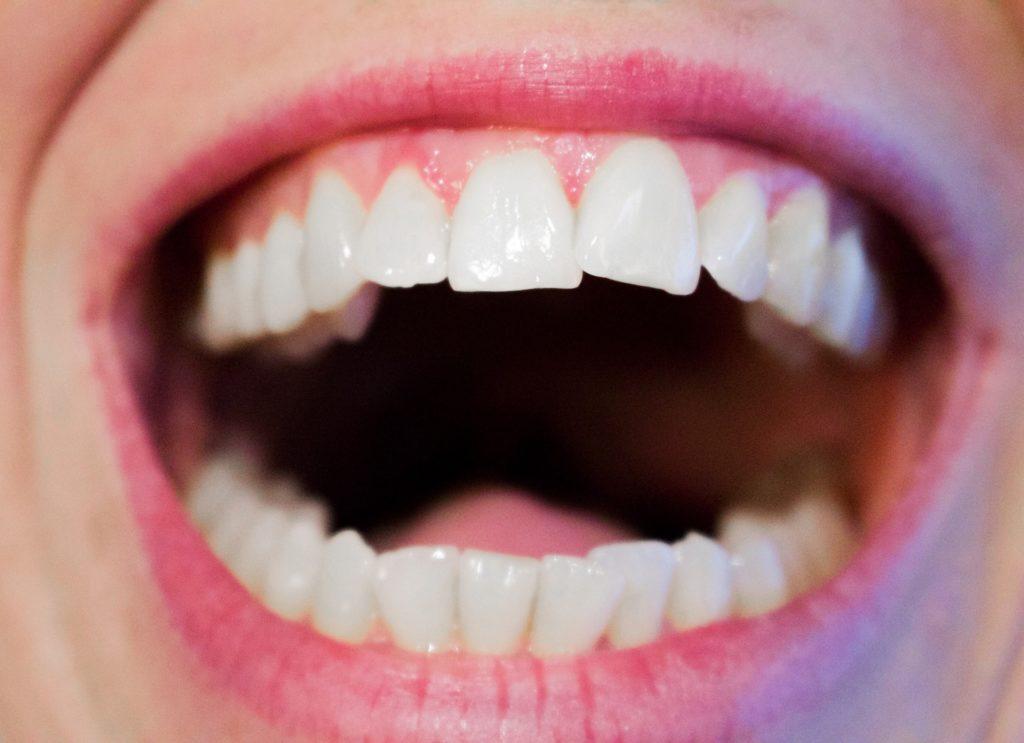 Jak dbać o zęby lepiej zapobiegać niż leczyć – Zęby są bardzo ważne